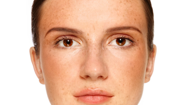 pigmented-skin