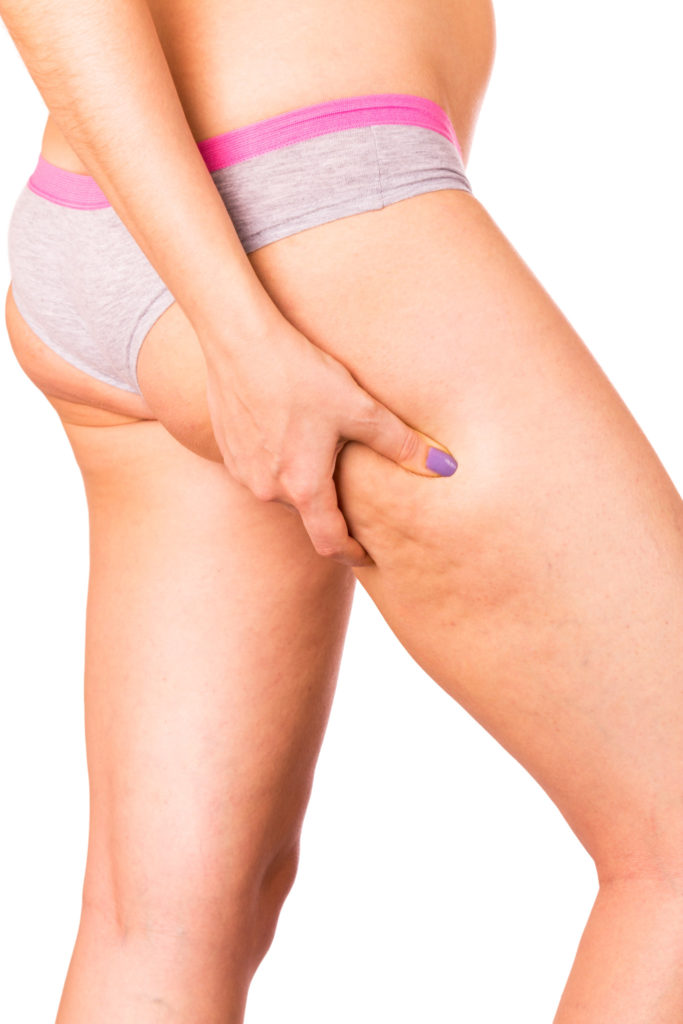 Skin staggered a cellulite. Isolated on white