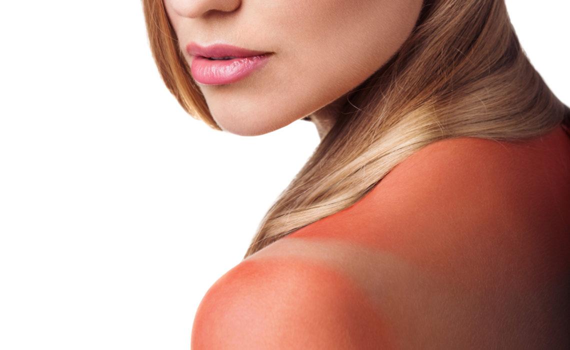Sunburn female shoulder isolated on white background