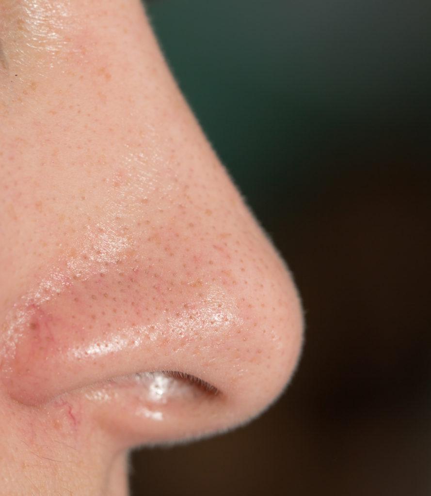 Women's nose. macro