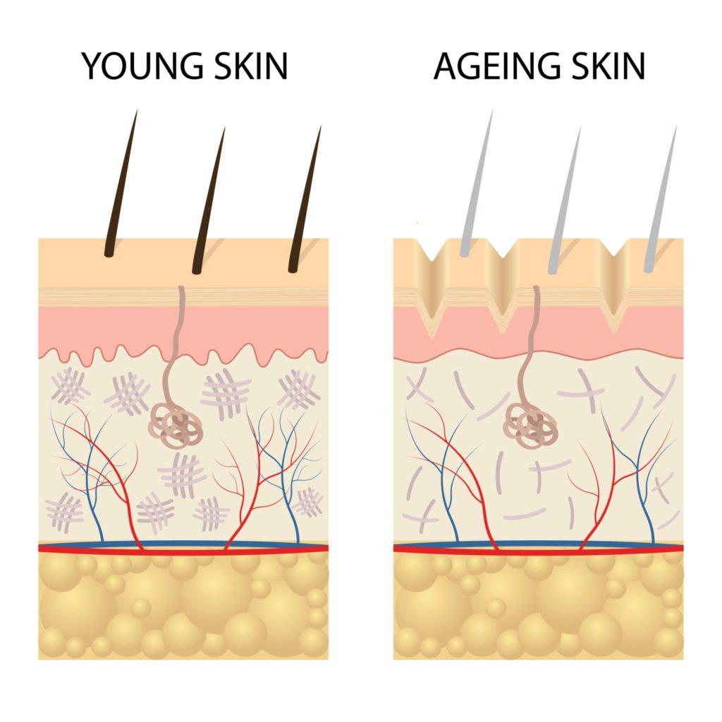 ung og eldre hud