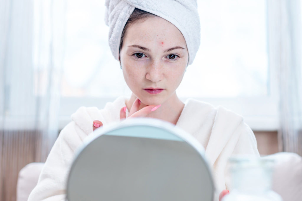 Beautiful unhappy young woman with a towel on her head detects acne on her face. Concept of hygiene and care for the skin